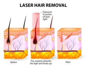best hair removal bucks county