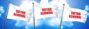 reduce appearance of unwanted tattoos