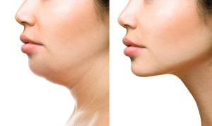 kybella double chin removal before and after